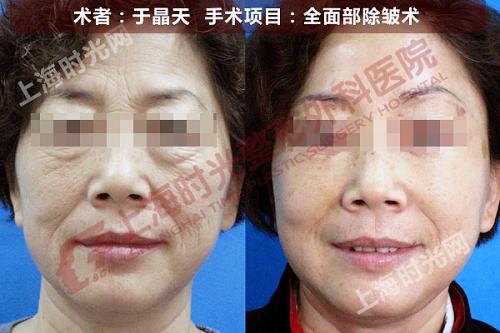 全面部除皱术手术前后效果对比图