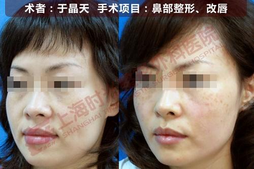 鼻部整形,改唇手术前后效果对比图