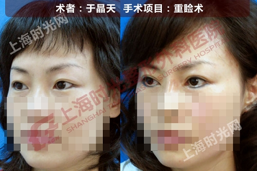 重睑手术前后效果对比图