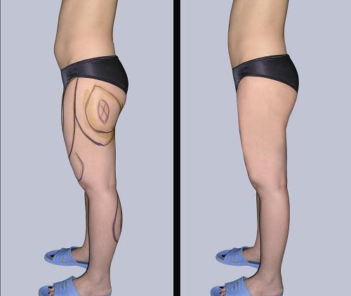 腿部吸脂手术前后效果对比图