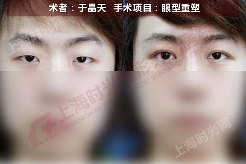 眼型重塑手术前后效果对比图
