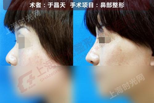 鼻部整形手术前后效果对比图
