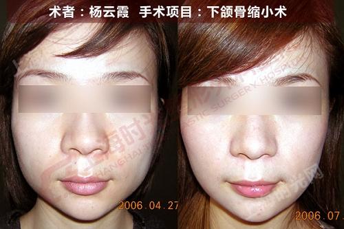 下颌骨缩小手术前后效果对比图