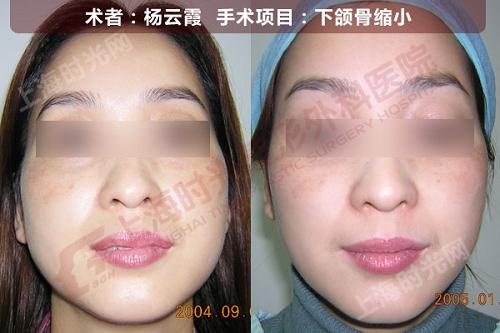 下颌骨缩小手术前后效果对比图2