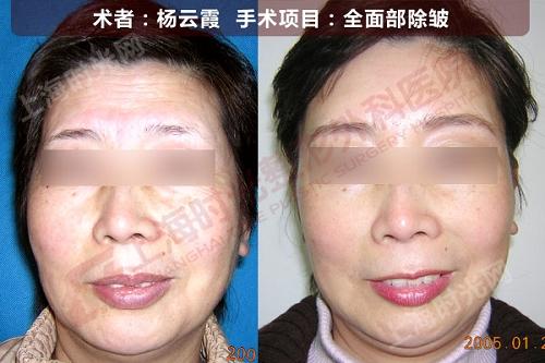 全面部除皱手术前后效果对比图2