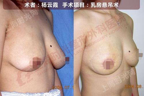 乳房悬吊术手术前后效果对比图