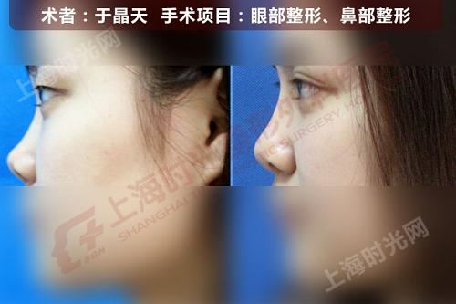 眼部,鼻部整形手术前后效果对比图