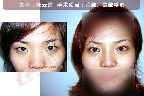 眼部,鼻部整形手术前后效果对比图2
