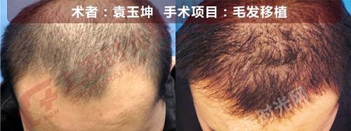 头发移植手术前后效果对比图