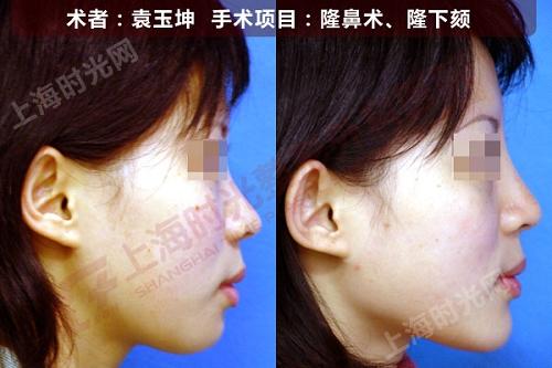 隆鼻,下巴整形手术前后效果对比图