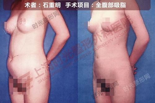 全腹部吸脂手术前后效果对比图3