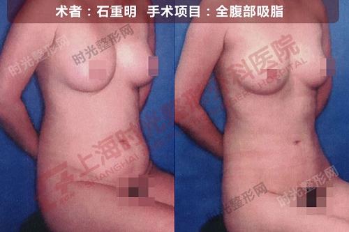 全腹部吸脂手术前后效果对比图4