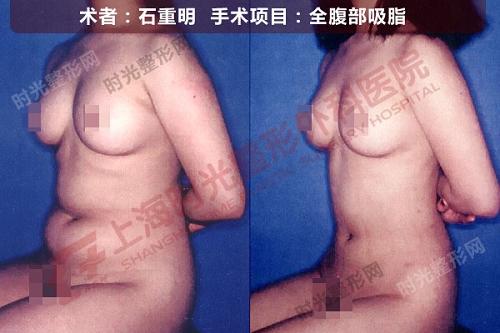 全腹部吸脂手术前后效果对比图5