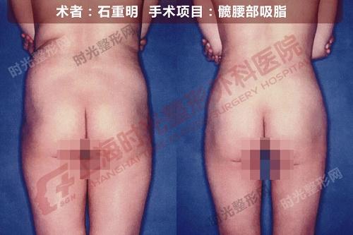 髋腰部吸脂手术前后效果对比图