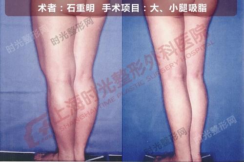 大、小腿吸脂手术前后效果对比图