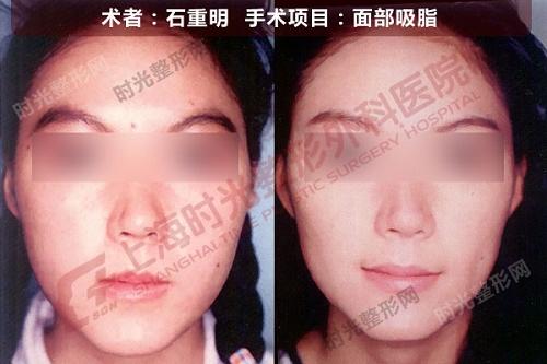 面部吸脂手术前后效果对比图
