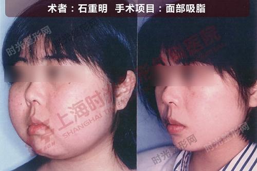 面部吸脂手术前后效果对比图2