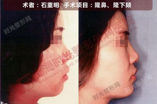 隆鼻,隆下颏手术前后效果对比图