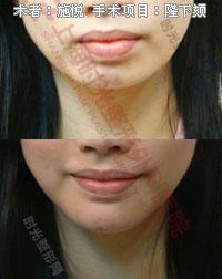 隆下颏手术前后效果对比图3