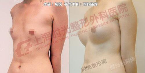假体隆胸手术前后效果对比图