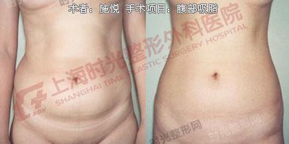 腹部吸脂手术前后效果对比图