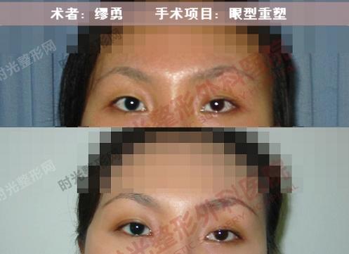 眼型重塑手术前后效果对比图2