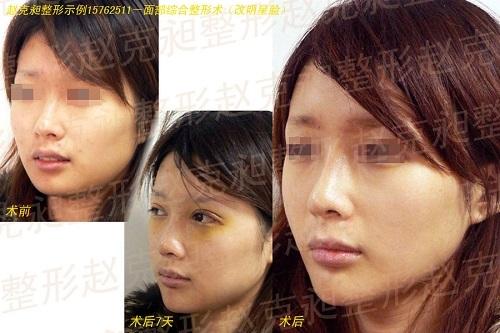 改明星脸手术前后效果对比图2