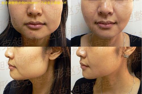 上海时光整形下颌骨立体缩小术手术前后效果对比图