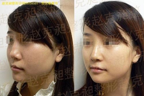 修改隆鼻术手术前后效果对比图