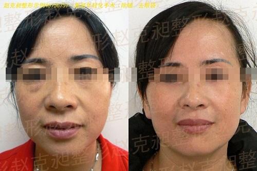 面部年轻化手术(除皱、祛眼袋)手术前后效果对比图