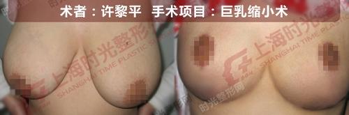 巨乳缩小术手术前后效果对比图
