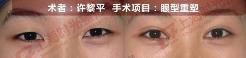 眼型重塑手术前后效果对比图3