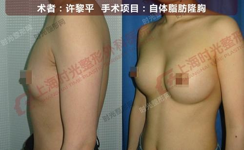 自体脂肪隆胸手术前后效果对比图2