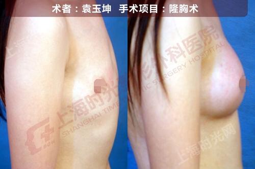 假体隆胸手术前后效果对比图2