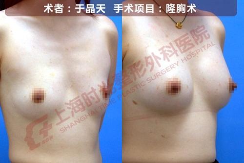 假体隆胸手术前后效果对比图4