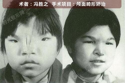 颅面畸形矫正手术前后效果对比图