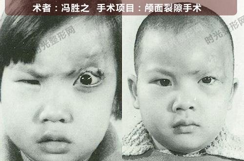 颅面裂隙手术前后效果对比图