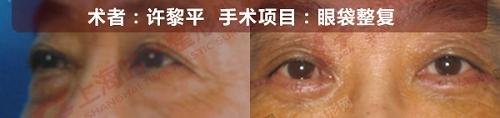 眼袋整复手术前后效果对比图