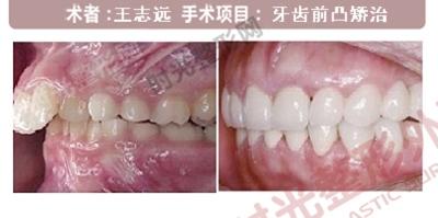 牙齿前凸手术前后效果对比图