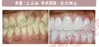 牙齿美白矫正手术前后效果对比图