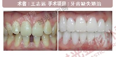 上海时光整形牙齿缺失手术前后效果对比图