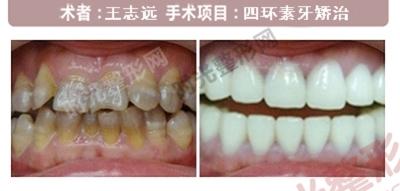 四环素牙手术前后效果对比图