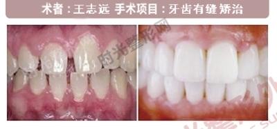 上海时光整形牙齿有缝手术前后效果对比图