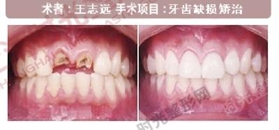 牙齿缺损手术前后效果对比图