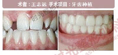 牙齿种植手术前后效果对比图