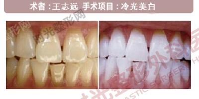牙齿冷光美白手术前后效果对比图