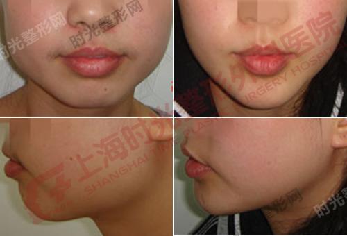 下颌角整形手术前后效果对比图