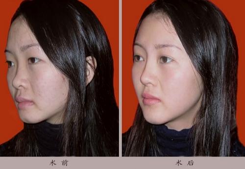 重睑-隆鼻-改唇丰下颌-祛痘手术前后效果对比图