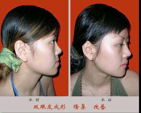重睑-隆鼻-改唇手术前后效果对比图