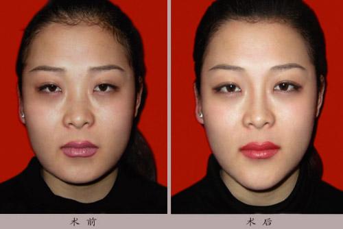 改重睑-隆鼻-矫正内眦皮-漂唇手术前后效果对比图